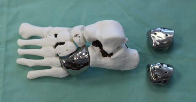Впервые в Израиле ребенку имплантировали искусственную кость, распечатанную на 3D-принтере!