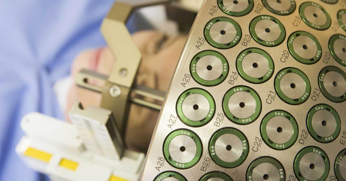 Гамма-нож – лечение опухолей головы и шеи без операции в Израиле, все о технологии и ее применении