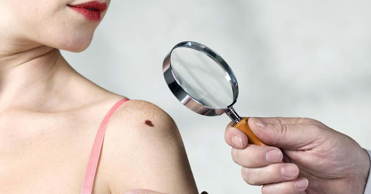 Хирургическое лечение плоскоклеточного рака кожи – ТОП-3 операций в Израиле