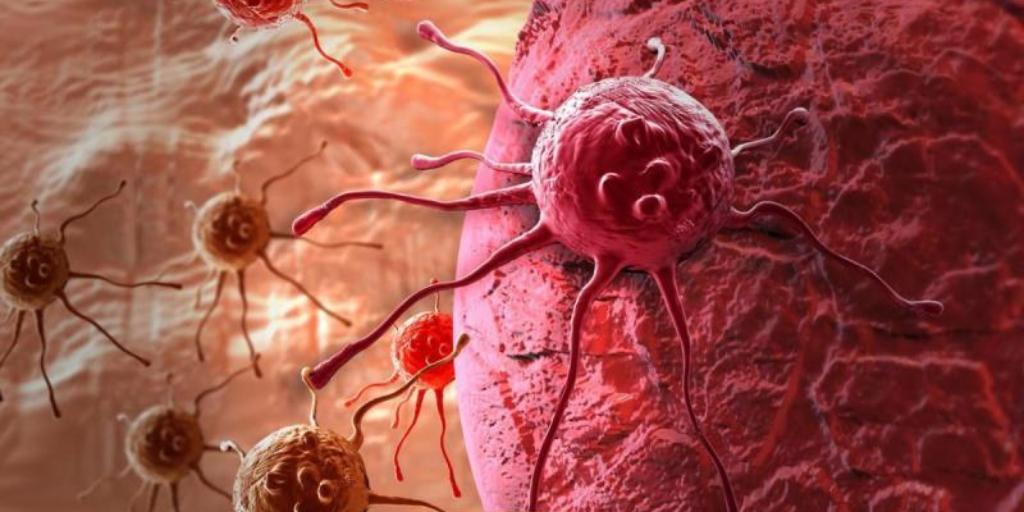 Убить меланому: в Израиле нашли средство, сдерживающее развитие рака