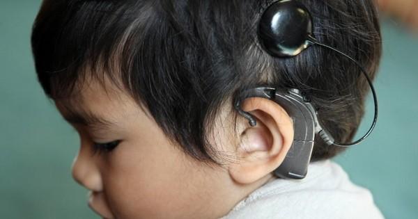 Кохлеарный имплантат при тяжелых нарушениях слуха: рассказывает профессор Михаль Лунц