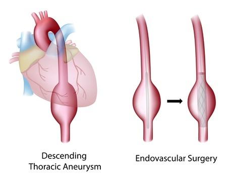 Лечение аневризмы грудной аорты в Израиле