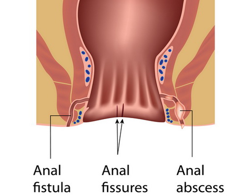 Контрактубекс при анальной трещине