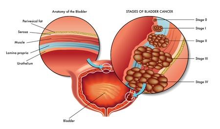 Лечение рака мочевого пузыря в Израиле
