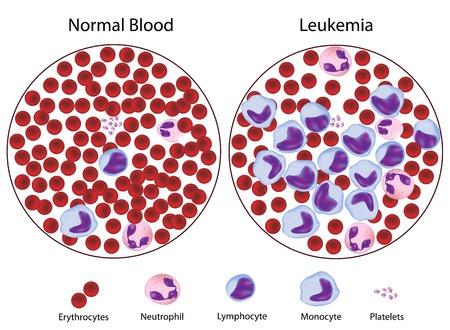 Лечение лейкоза (лейкемии) в Израиле