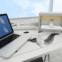Эндопротезирование тазобедренного сустава с использованием 3D -принтера. Впервые Израиле