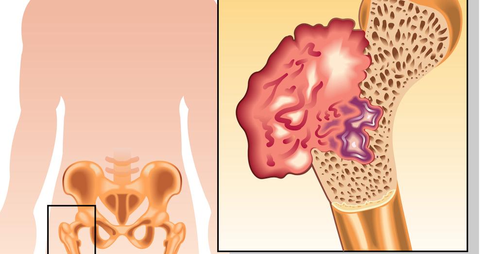 методики лечения рака костей