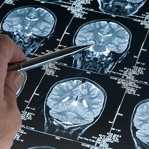 Опухоли головного мозга: выявление, диагностика и лечение