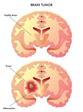 Особенности лечения опухолей головного мозга в израильских клиниках