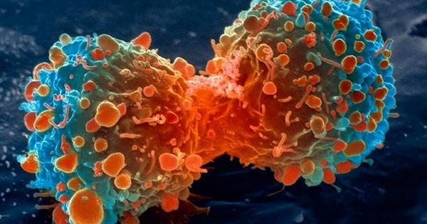 Что такое раковые опухоли, и можно ли остановить рак?