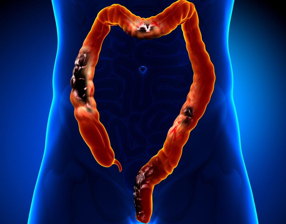Стоимость лечения рака кишечника