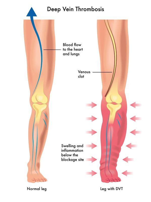 Опасна ли операция на венах ног