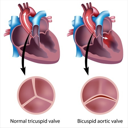 Defective heart valve