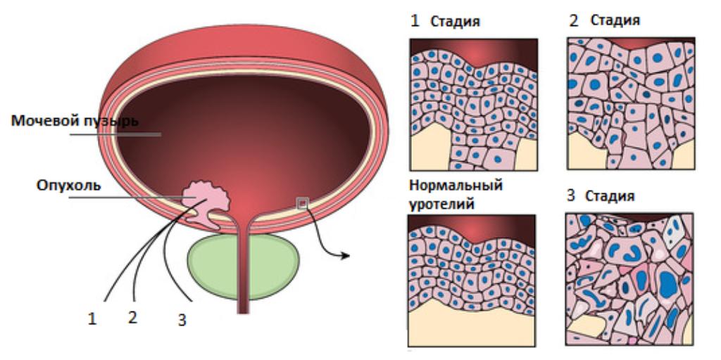 Внутрипузырная химиотерапия при раке мочевого пузыря – особенности и эффективность методики