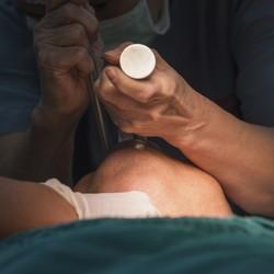 Лапароскопия – будущее хирургии. Так считают израильские врачи