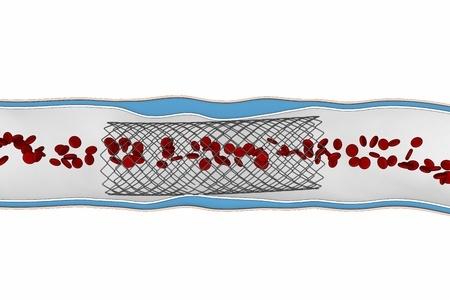 Эндоваскулярный стент-графт