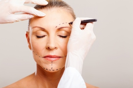 Подтяжка лица (ритидэктомия)
