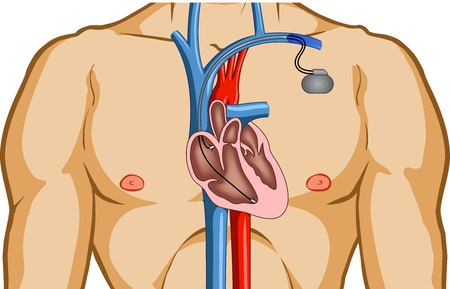 Имплантация кардиостимулятора в Израиле