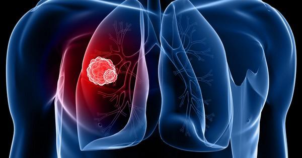 Рак легких: персонализированная медицина