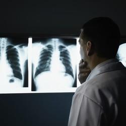 Рак легких: новая технология ранней диагностики в Израиле