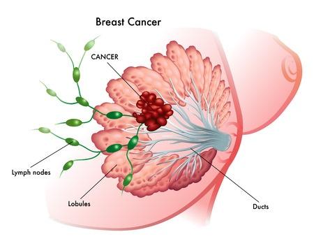Лечение рака молочной железы (груди) в Израиле