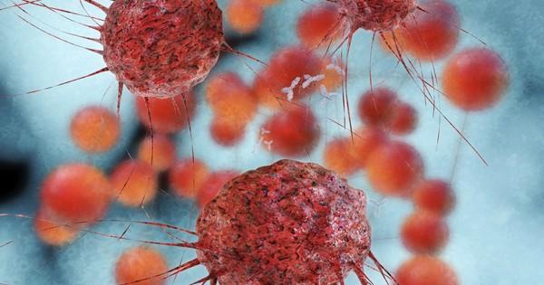 Новая технология предотвращает распространение метастаз при раке груди
