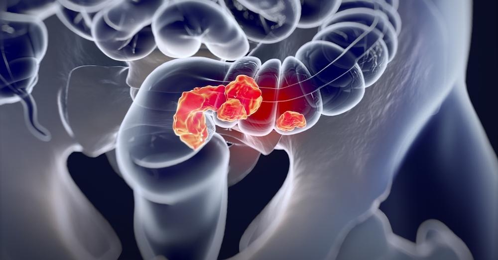 Стандарты лечения рака кишечника