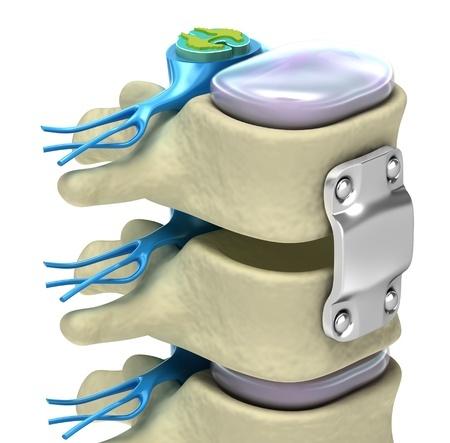 Костный трансплантат в спинальной хирургии