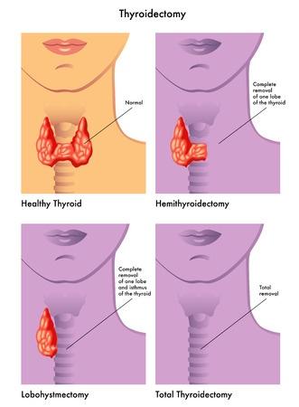 рак щитовидки фото