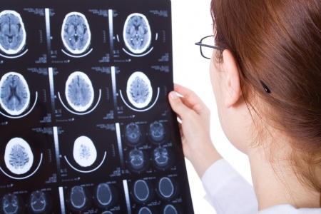 Гидроцефалия головного мозга – лечение у взрослых и детей