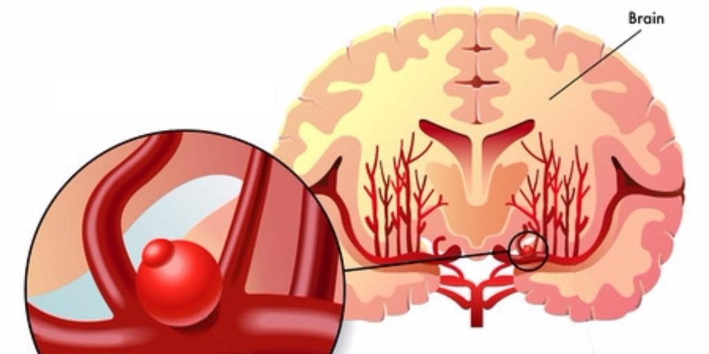 Катетеризация сосудов головного мозга – уникальная методика лечения аневризмы в Израиле без операции