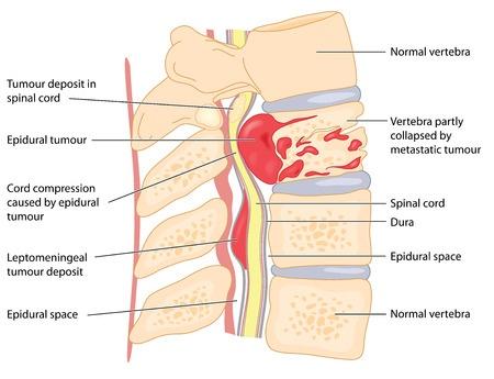 Первичные и вторичные опухоли позвоночника и спинного мозга
