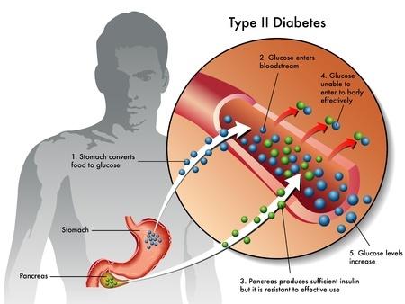 Качество жизни при сахарном диабете 2 типа